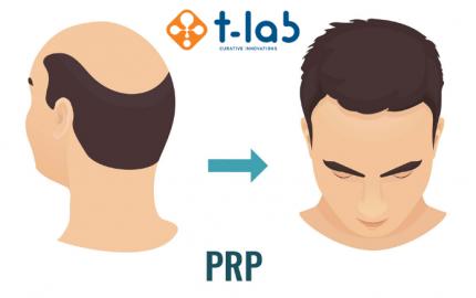 PRP vlasová terapie